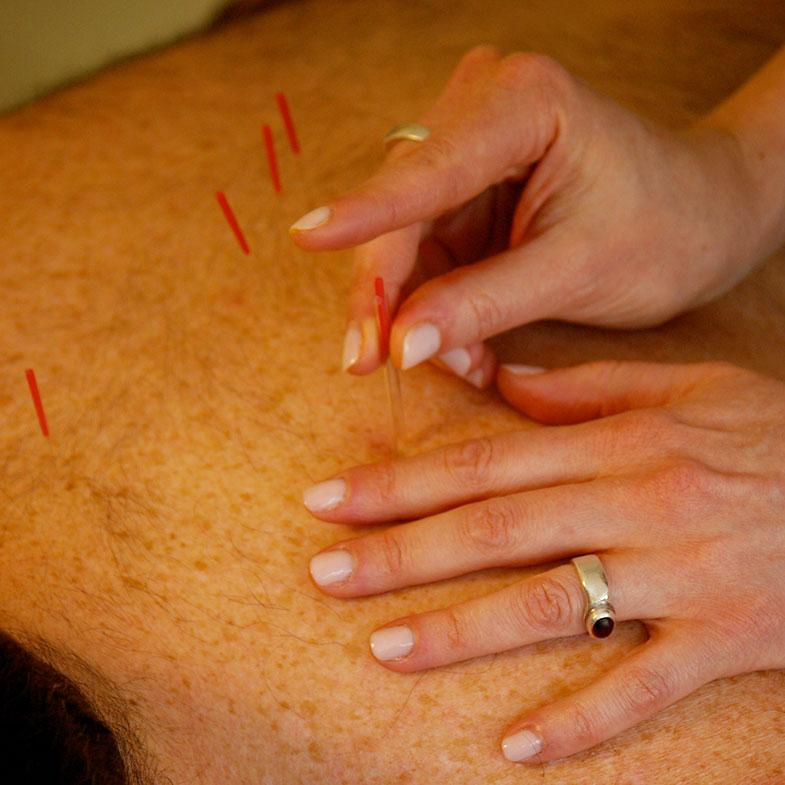 Acupuncture | Donna Sarna